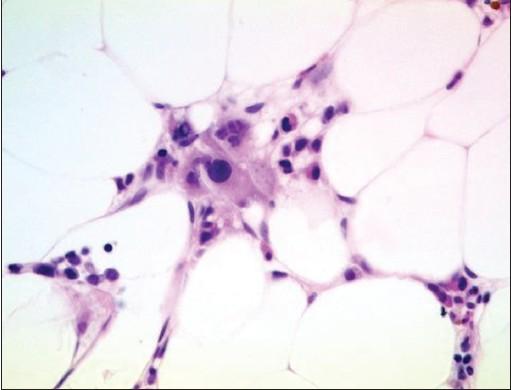 HYPOPLASTIC MDS PDF