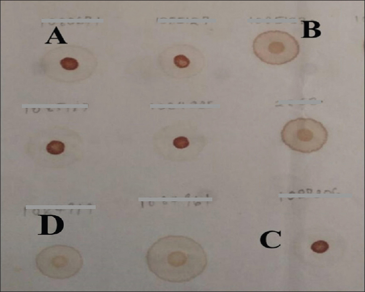 Figure 1: Paper based test interpretations. (A and C) Haemoglobin SS. (B) Haemoglobin AA and (D). Haemoglobin AS