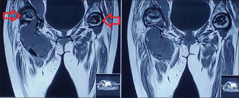 Figure 1: Magnetic resonance imaging of the hip showing bilateral osteonecrosis of femoral heads (Grade IV on the right and Grade II on the left side), an abscess of size 15 cm × 8 cm × 6.5 cm in the lower part of the right iliopsoas muscle at the medial aspect of the thigh